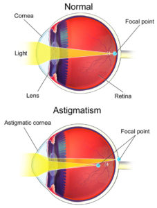 Astigmatism Eye Graphic Explanation