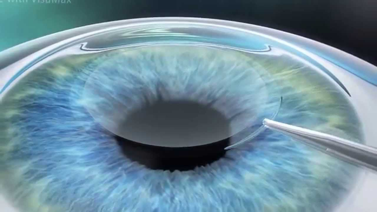 SMILE Small Incision Lenticule Extraction